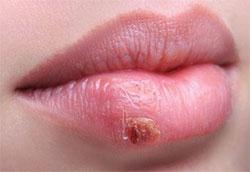 stress mond koortslip koortsblaasjes